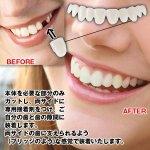画像2: インスタントスマイル「テンポラリーキット」 (部分用,部分付け歯キット,男女兼用,審美,美容,すきっ歯,変色歯,黄ばみ歯) (2)